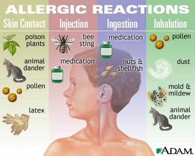 Mold Allergies In Children